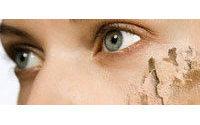 Expertos en autocuidado recomiendan hidratar y proteger la piel frente al viento y el frío