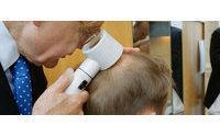 No science behind popular hair loss product: Italy