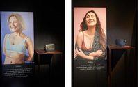 Итальянский бренд Ballin поддержал людей с несовершенствами кожи