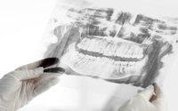 Ab 2018 Verzicht auf die umstrittene Chemikalie Fluorid in der Zahnpflege